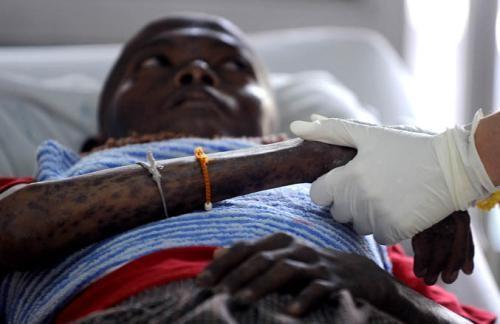 正宗艾滋病医保诚信经营 阻断 高品质注射传播hiv