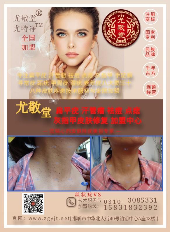 丝状疣激光治疗_点痣去痣加盟_邯郸市邯山区尤敬堂生物科技有限公司