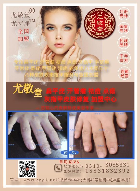 专业治疗甲周疣方法-治疗丝状疣的外用药-邯郸市邯山区尤敬堂生物科技有限公司
